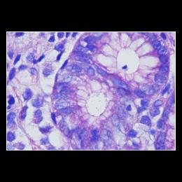 Ґімзе для Helicobacter Pilori, 75 тестів, 1 набір